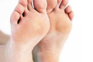 pies causas y remedios para los pies hinchados Causas y remedios para los pies hinchados pies