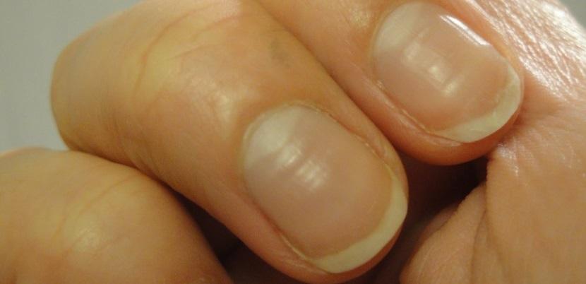 uñas-agrietadas-830x622 uñas Mis uñas interpretan mi estado de salud u  as agrietadas